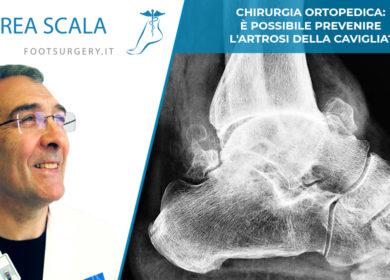 Chirurgia ortopedica: è possibile prevenire l'artrosi della caviglia?