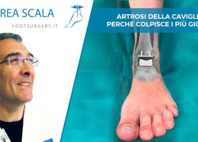 Artrosi della caviglia: perché colpisce i più giovani